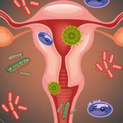 Гинекологические инфекции: способы лечения и профилактики