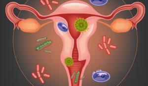 Причины поражения репродуктивных органов женщины
