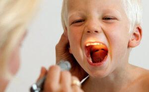 Правила успешной терапии детей с ангиной