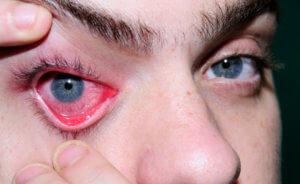 Опасные осложнения глубокой формы офтальмогерпеса
