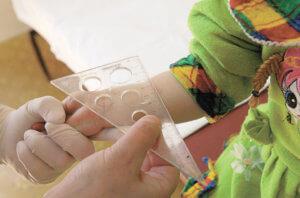 Туберкулиновая проба и прививка БЦЖ