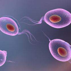 Что такое трихомониаз, пути инфицирования, симптомы, методы терапии