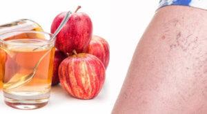 Яблочный уксус для устранения отеков на ногах