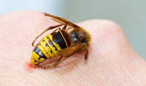 Пчелиные укусы