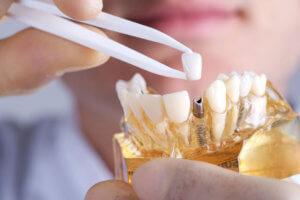 Варианты зубного протезирования