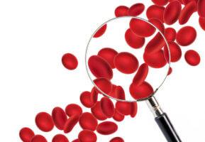 Симптомы и методы лечения анемии