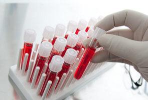 Диагностическая ценность крови