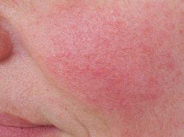 Ломкость сосудистой стенки при синдроме Рандю-Ослера-Вебера