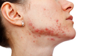 Гнойные инфекции, вызванные стафилококком