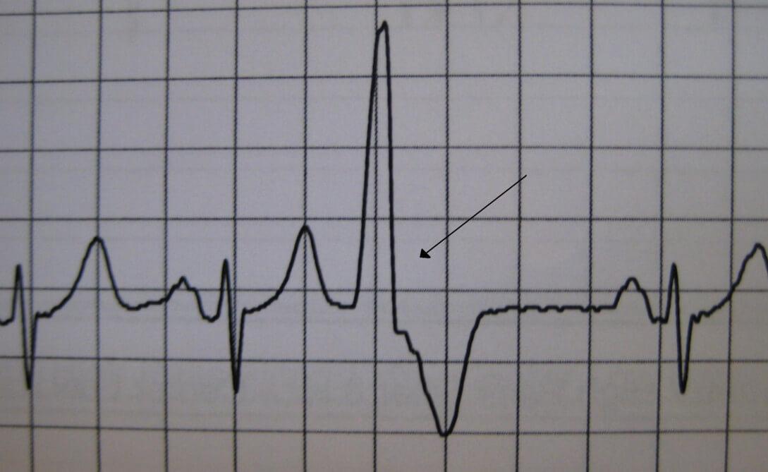 ЭКГ при желудочковой экстрасистолии