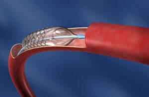 Введение эластичного катетера в сосуд при аритмии