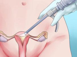 Прогрессирование эндометриоза
