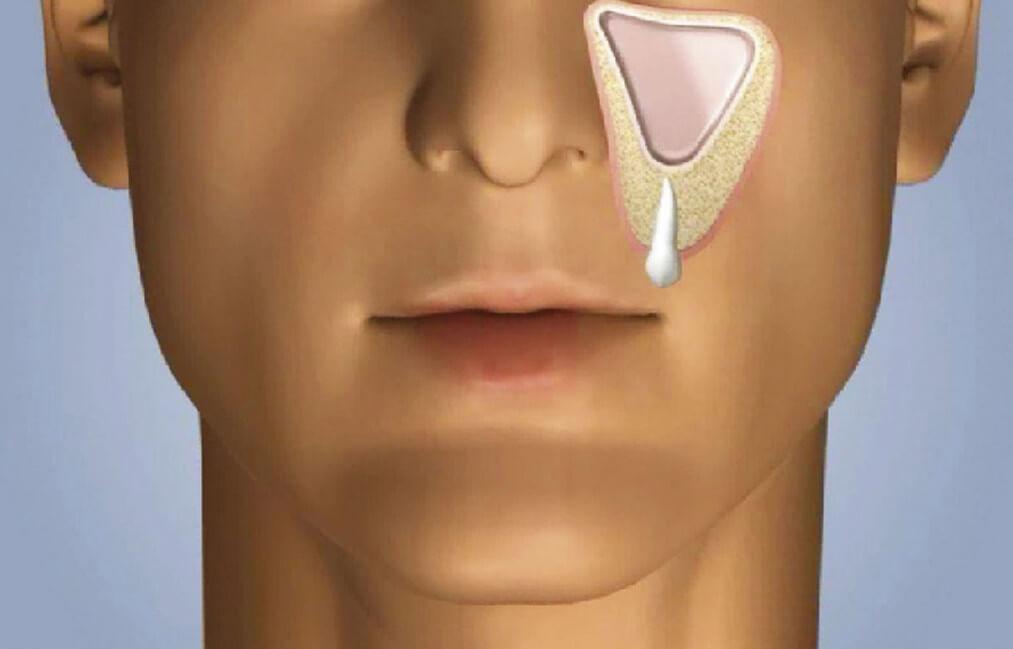 Одонтогенный синусит, к какому врачу обращаться, как правильно лечить