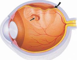 Виды отслойки сетчатки глаза