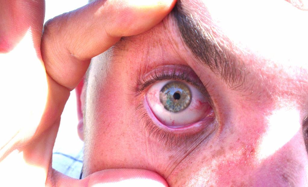 Лечение ангиопатии сетчатки глаза, ее патогенез и этиология