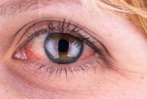Ангиопатия сетчатки глаза у беременных