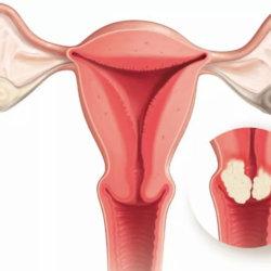 Симптомы дисплазии шейки матки: степени развития недуга, осложнения