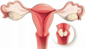 Ранние стадии дисплазии шейки матки