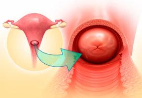 Причины гипертрофии шейки матки